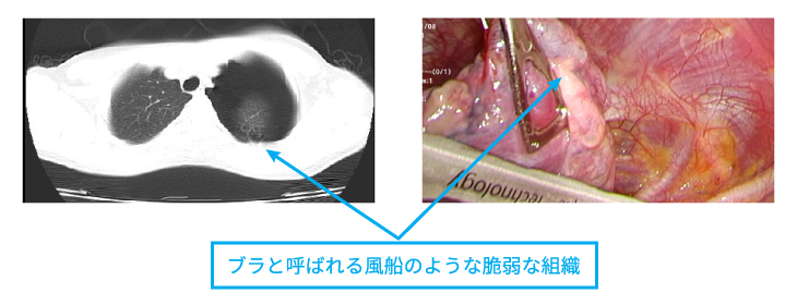 pneumothorax_center_img03.jpg
