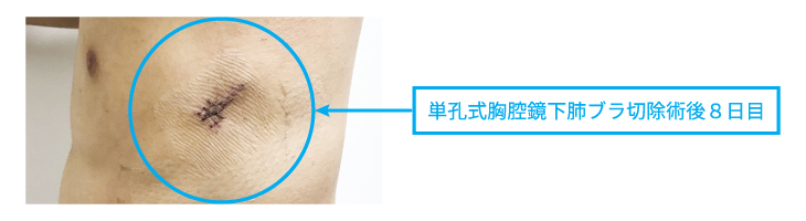 pneumothorax_center_img04.jpg
